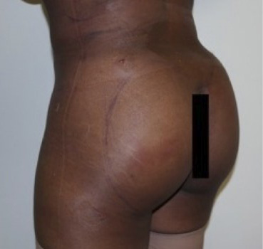 After-Buttock Augmentation Procedures