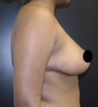 After- BREAST TRANSFORMATIONS
