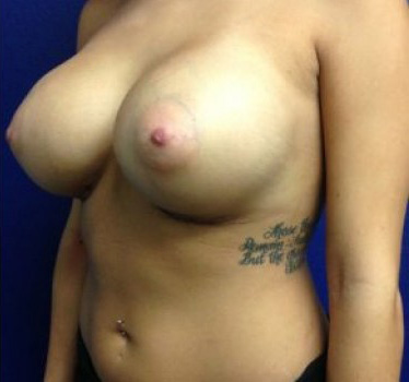 After-BREAST TRANSFORMATIONS