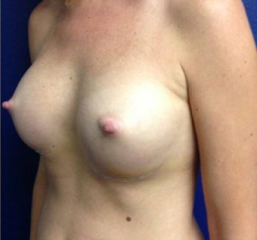 After-BREAST TRANSFORMATIONS (Individual Results May Vary)