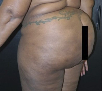 Before-Buttock Augmentation Procedures