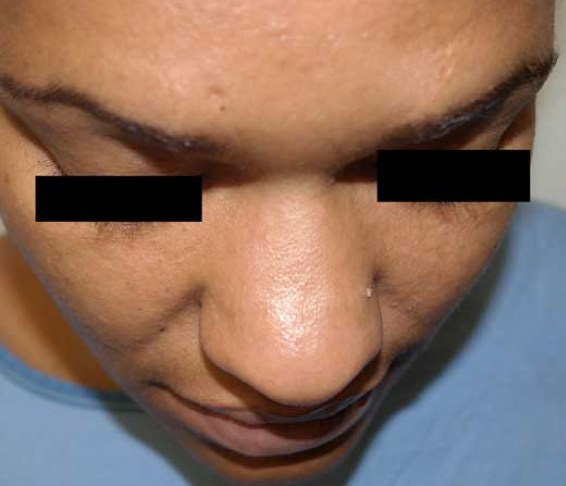Before-Nose Transformations
