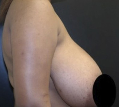 Before- BREAST TRANSFORMATIONS