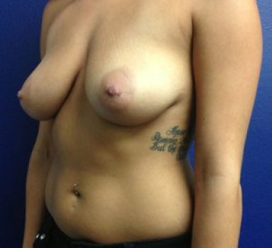 Before-BREAST TRANSFORMATIONS