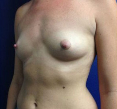 Before-BREAST TRANSFORMATIONS (Individual Results May Vary)